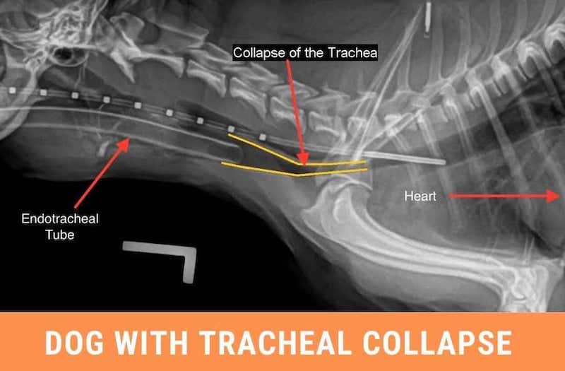 stages of tracheal collapse in dogs